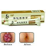 Chinese Herbal For Treatment Hemorrhoids Cream Anus Prolapse Anal Fissure Antibacterial Cream By Shouhengda (1 Pcs Pack)
