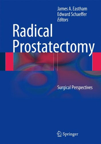 Radical Prostatectomy  Surgical Perspectives