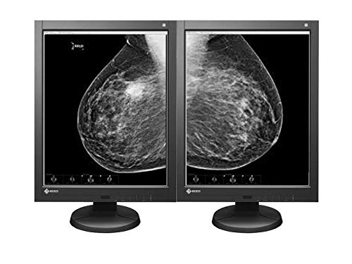 Pair (x2) Eizo Radiforce GX530 5MP Monochrome Digital Mammography Medical Diagnostic LED Radiology Monitors (GX530-CL-P-BK)