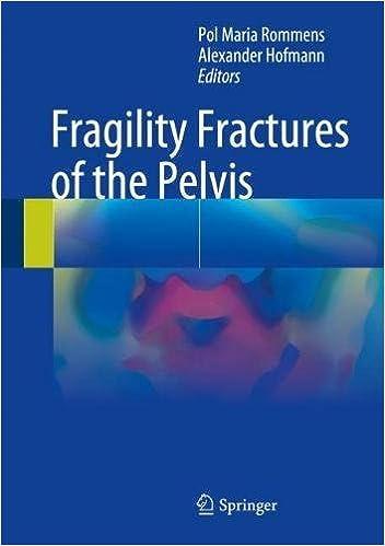 Amazon   Fragility Fractures o...