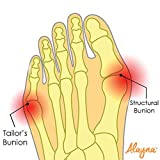 Bunion Corrector and Bunion Relief Gel Pad Big