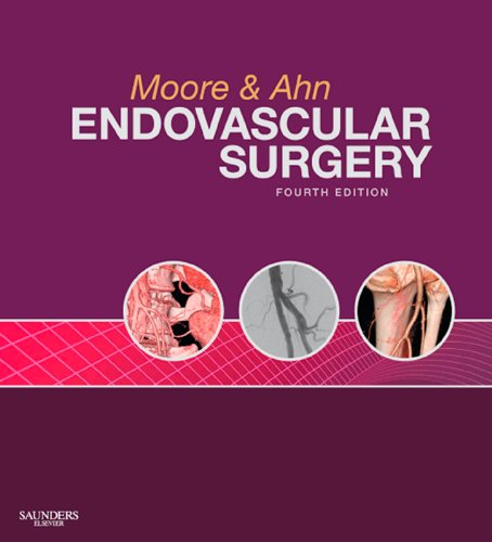 Download Endovascular Surgery Pdf