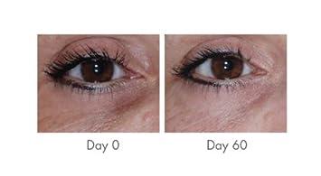 Vitamin K Concealer Eye Cream Cernor