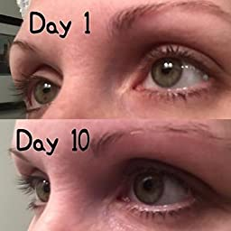 a83d5ce15af Amazon.com: Customer reviews: Alice Nouveau - Lash Enhancing Growth Serum -  Lengthen, Define, and Strengthen your lashes