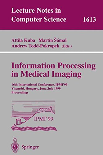 Information Processing in Medical Imaging: 16th International Conference, IPMI'99, Visegrad, Hungary, June 28 - July 2, 1999, Proceedings (Lecture Notes in Computer Science) by Springer