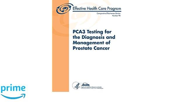 pca3 test prostata