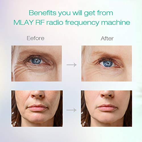 Radio Frequency Skin Tightening, MLAY RF Radio Frequency Face Lifting – Rf Machine for Face and Body – Professional Home Skin Care Anti Aging Device, Salon Effects