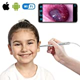 WiFi Otoscope for iPhone and Android, Teslong New Upgrade 4.3mm Visual Ear Cleaner with Wireless Adapter, Earwax Removal Tool, Washable Speculum Tips and Carrying Bag
