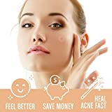 Acne Patches (120 Pack), Tea Tree Oil and
