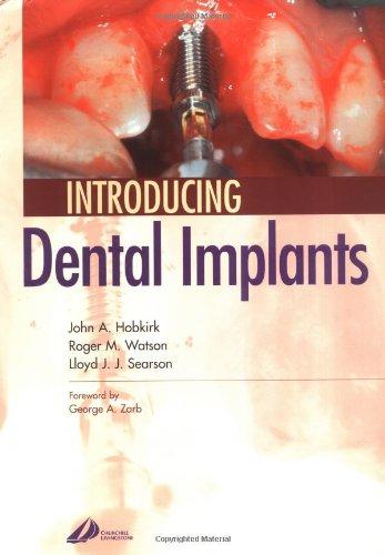 Introducing Dental Implants, 1e