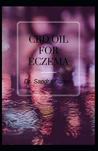 CBD Oil for Eczema: It entails everything regarding the management of eczema with CBD Oil