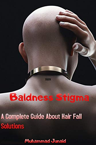 Baldness Stigma (A Complete Guide About Hair Fall Solutions): How To Stop Hair Fall