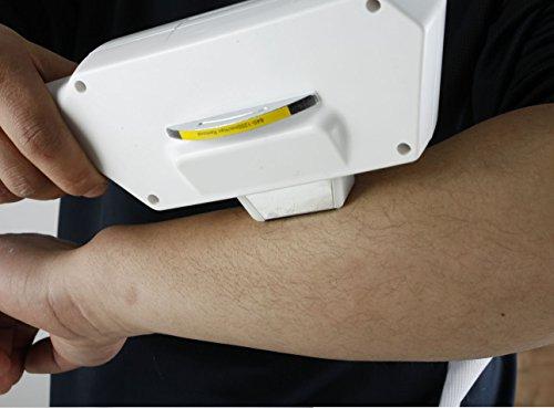 I-P-L hair removal salon Equipment-KKD by dermapeel (Image #1)