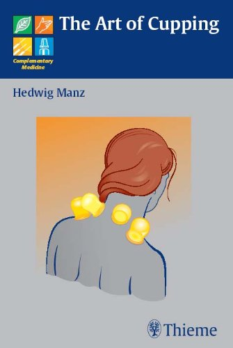 The Art of Cupping (1st 2008) [Manz]