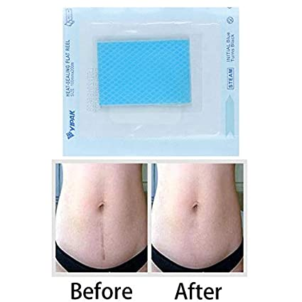 Buy World Beauty S 1pc Scar Away Patch Removal Wound Marks Cesarean