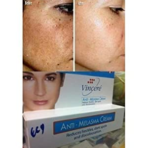Best Cream Anti Melasma Reduces Age Spots, Sun Spots, Pigmentation, Freckles 15 G.