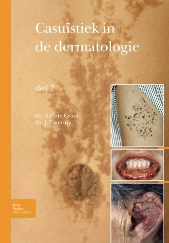 Casuïstiek in de dermatologie - deel 2 (Dutch Edition)