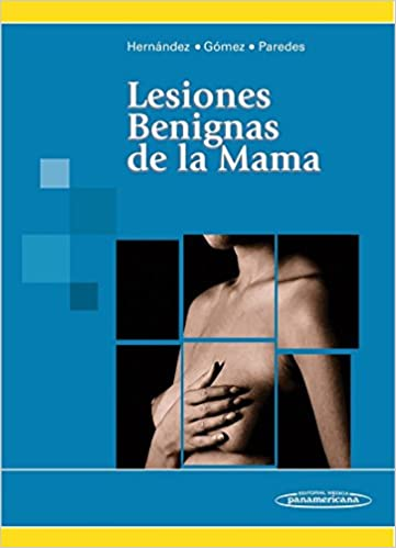 Book Lesiones benignas de la mama / Benign Breast Lesions