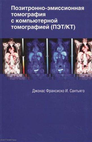 Pozitronno-emissionnaya tomografiya s kompyuternoy tomografiey (PET/KT) pdf