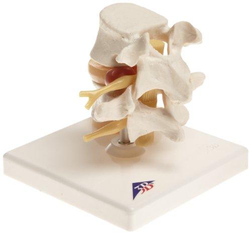 (3B Scientific A76 Lumbar Spinal Column with Prolapsed Intervertebral Disc, 5.1