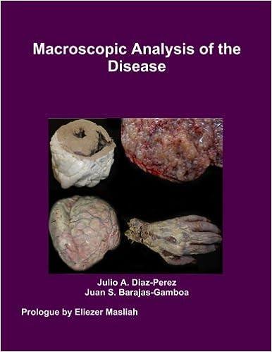 Book Macroscopic Analysis of the Disease [2012] (Author) Julio Diaz-Perez, Juan Barajas-Gamboa