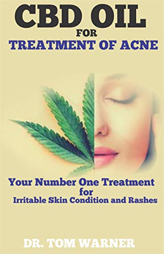CBD OIL FOR TREATMENT OF ACNE: Your Number One Treatment for