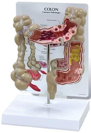 Colon Human Anatomical Model With Pathologies Amazon