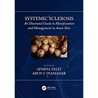 Systemic Sclerosis: An Illustrated Guide to Manifestation and Management in Asian Skin