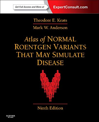 Atlas Of Normal Roentgen Variants That May Simulate Disease  Expert Consult   Enhanced Online Features And Print