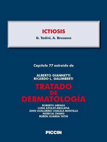 Descargar Libro Capítulo 77 Extraído De Tratado De Dermatología - Ictiosis A.giannetti
