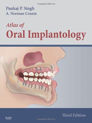 Atlas of Oral Implantology
