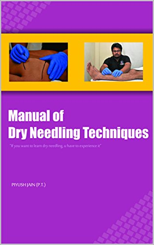 Manual of dry needling techniques color edition livros na amazon leia este livro de graa com o kindle unlimited fandeluxe Images