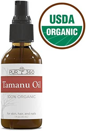 Pur360 Tamanu Oil - Pure Cold Pressed and Unrefined - Best Treatment for Psoriasis, Eczema, Acne Scar, Nail Fungus Plus More - Relief for Dry, Scaly Skin, Blisters and More