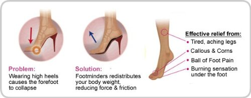 78e9f76789 Amazon.com: Footminders Catwalk Orthotic Arch Support Insoles for High Heel  Shoes, Pumps, Sandals and Boots (Pair) (SMALL: Women 7 - 8½) - Relieve Foot  Pain ...