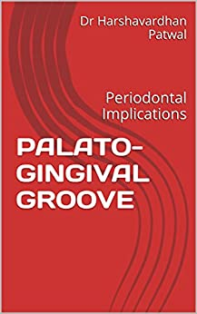 Free PDF PALATO-GINGIVAL GROOVE: Periodontal Implications