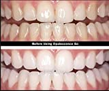 Opalescence Go 15% Teeth Whitening Trays