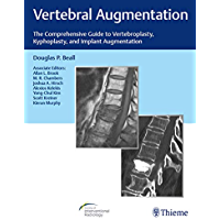 Vertebral Augmentation: The Comprehensive Guide to Vertebroplasty, Kyphoplasty, and Implant Augmentation (English Edition)
