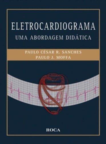 Eletrocardiograma: Uma abordagem didática