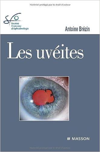En ligne Les Uvéites epub, pdf