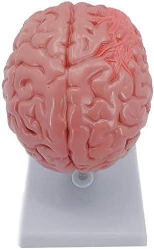 Hersenstructuur Anatomy Neurologie Medische hulp bij het onderwijs Brain Stroke Pathologie Model 0828 Model