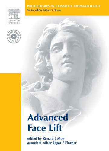 Procedures in Cosmetic Dermatology Series: Advanced Face Lifting: Textbook with DVD