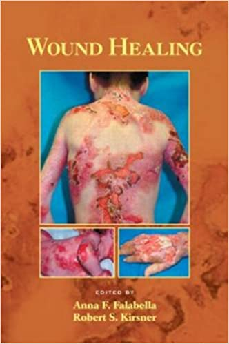 Wound Healing (Basic and Clinical Dermatology)