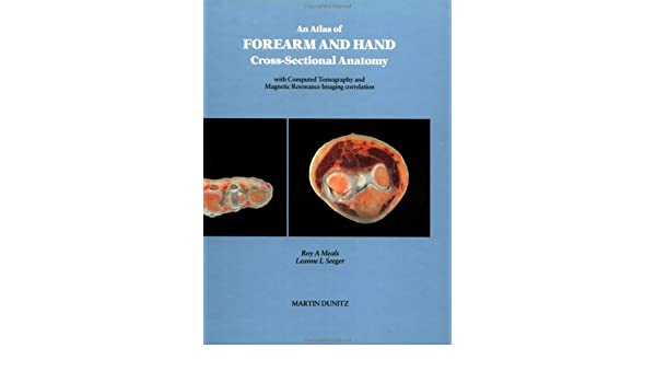 An Atlas of Forearm and Hand Cross-Sectional Anatomy with CT and MRI ...