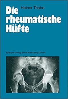Die rheumatische Hüfte (German Edition)