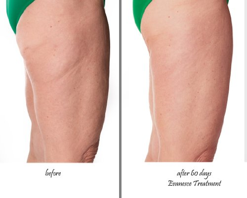 Amazon Evanesce Cellulite Cream Treatment And Skin Firming