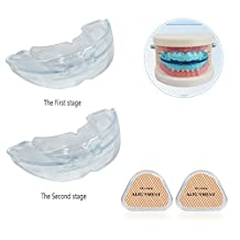 Teeth Braces Mouthguard, 2-in1 Tooth Orthodontic Appliance Teeth Retainer Two-stage Adjuvant Dental Care Tool Tooth Braces Trainer, Anit Snoring Device (Transparent Soft+Transparent Hard)