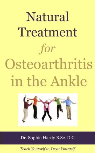Natural Treatment for Osteoarthritis in the Ankle (Teach Yourself to Treat Yourself for Ankle Osteoarthritis Book 1)