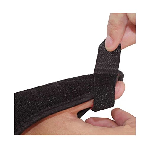 Or symptoms thumb broken sprained