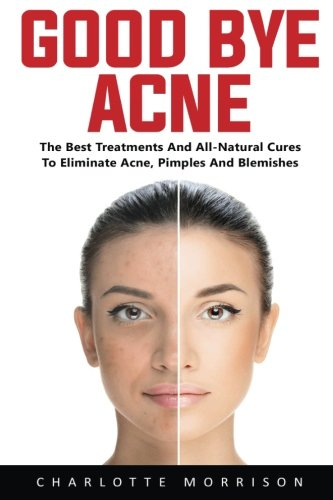 Good-Bye Acne: The Best Treatments And All-Natural Cures To Eliminate Acne, Pimples And Blemishes
