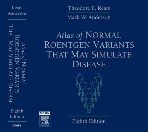 Atlas Of Normal Roentgen Variants That May Simulate Disease, 8e